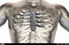 چاپ سهبعدی دنده و جناغ سینه برای یک بیمار سرطانی