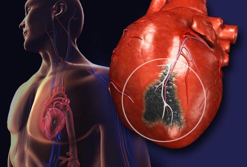 شناسایی آسیب قلبی در 10 دقیقه با حسگر جدید