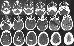 اسکن مغزی میتواند روزی همه رازهایتان را فاش کند؟ /پیشرفت جنجالی پزشکی