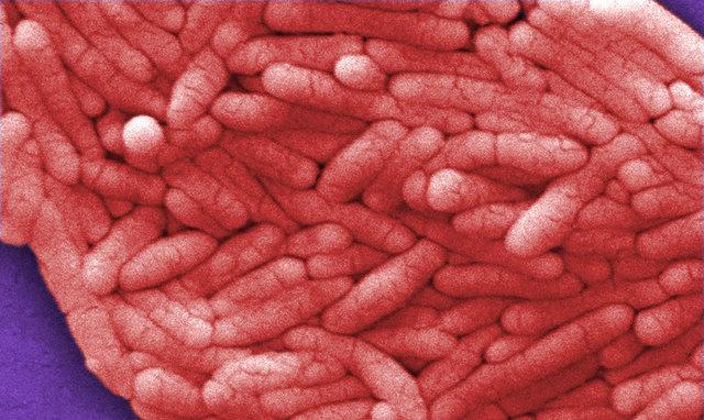 درمان تومور مغزی به کمک باکتری مسمومیت